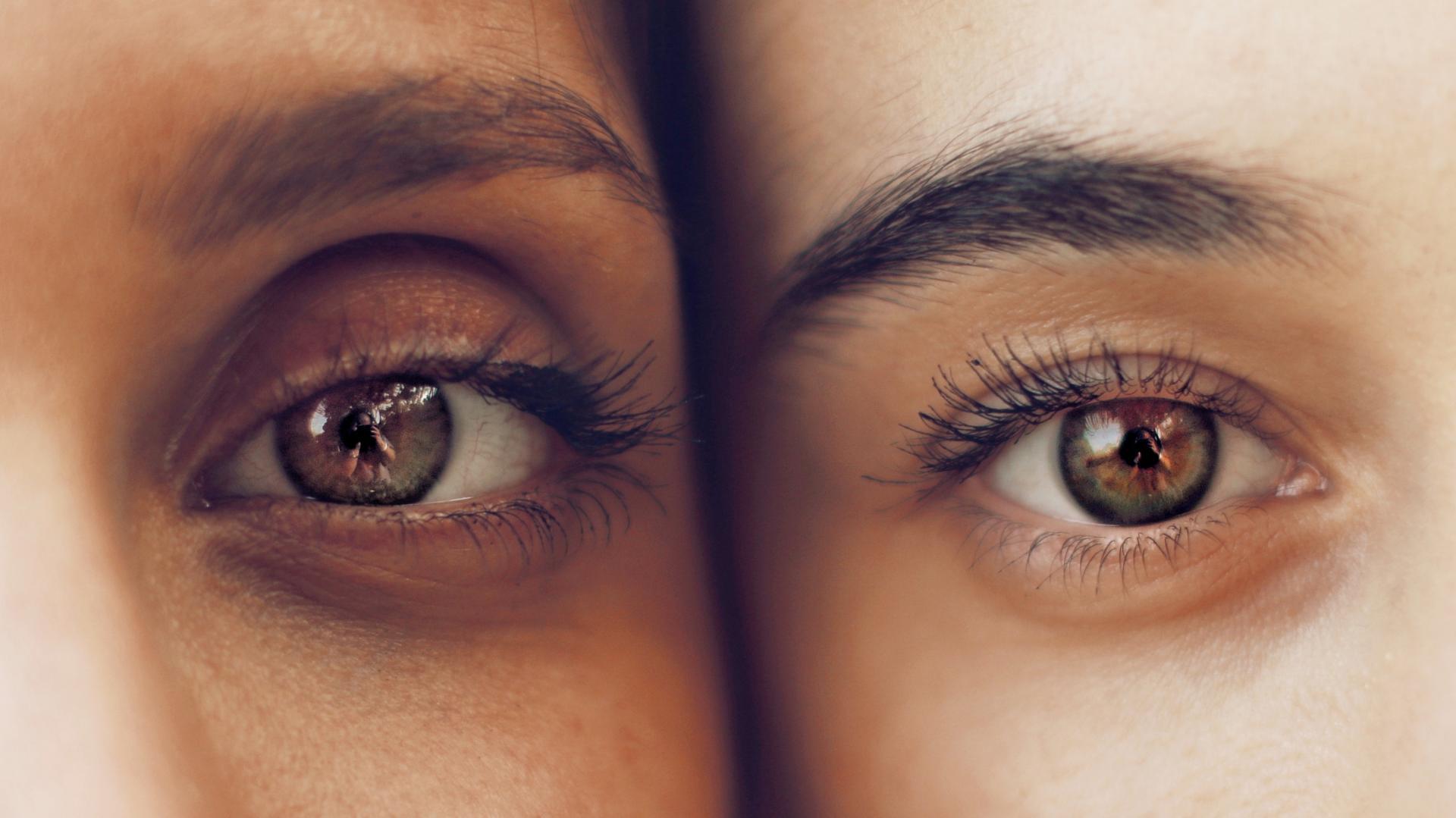 under eye dark spots